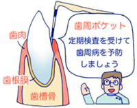 歯周ポケット測定