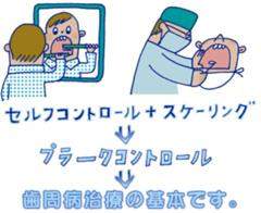 VOL.31 歯周病の治療はプラークコントロールから