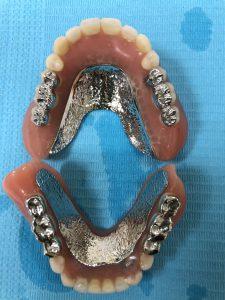 よく噛める総義歯