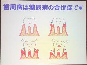 糖尿病合併症(歯周病)研修会