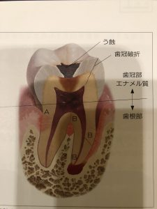 歯髄壊死を考察