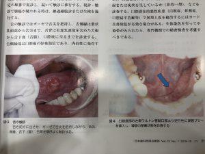 早期発見‼︎口腔癌